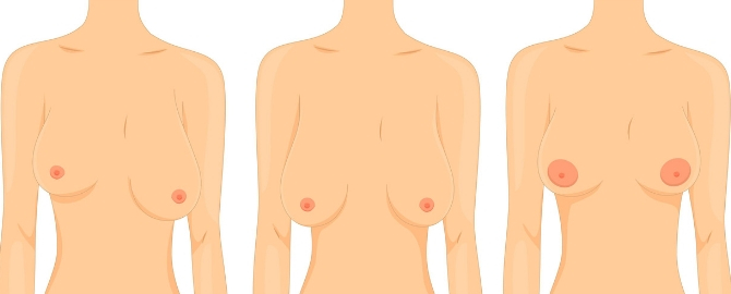Different Types Of Tits photo 17