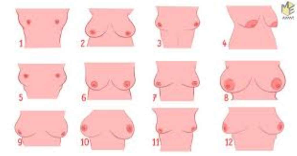 Different Types Of Tits photo 4